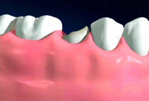 khi nào bắt buộc phải nhổ răng 2