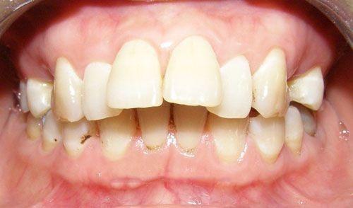 mài răng cửa bị hô để ép vào có được không 1