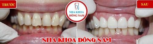 Mặt dán sứ phục hình cho hàm răng trên bị mẻ và thưa