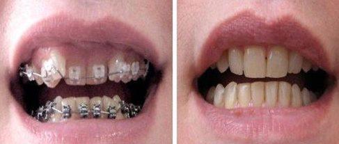 tác hại của việc niềng răng là gì? sự thật ra sao 1