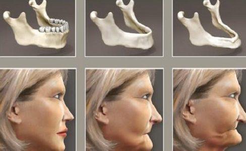 tác hại của việc niềng răng là gì? sự thật ra sao 3