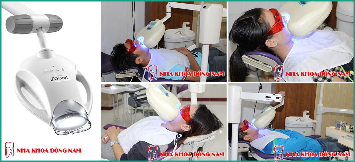 tẩy trắng răng bằng đèn zoom tại nha khoa đông nam