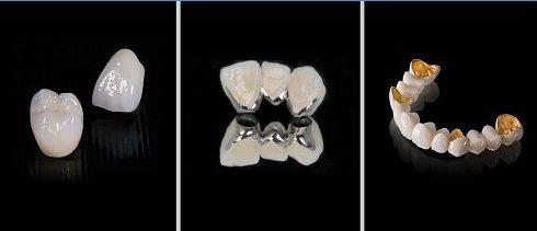 tổng hợp các loại răng sứ kim loại trên thị trường hiện nay 1