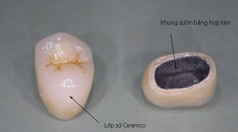 tổng hợp các loại răng sứ kim loại trên thị trường hiện nay 2
