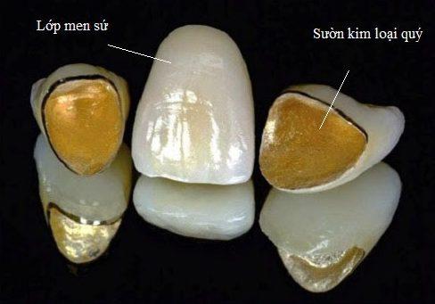 tổng hợp các loại răng sứ kim loại trê4n thị trường hiện nay