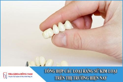 tổng hợp các loại răng sứ kim loại trên thị trường hiện nay