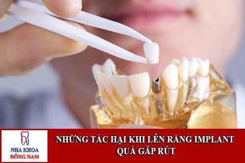 Những Tác Hại Khi Lên Răng Implant Quá Gấp Rút