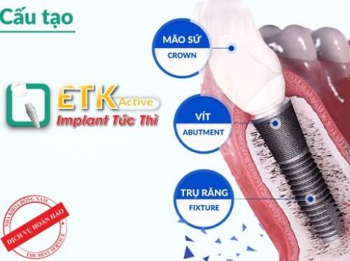 Những Tác Hại Khi Lên Răng Implant Quá Gấp Rút-2