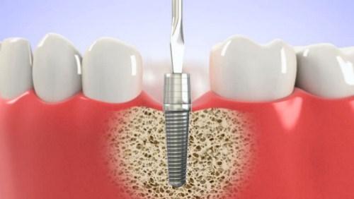 Những Tác Hại Khi Lên Răng Implant Quá Gấp Rút-7