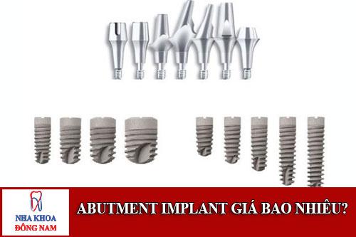 abutment implant giá bao nhiêu