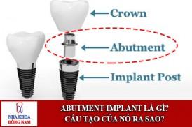 abutment implant là gì? cấu tạo của nó ra sao?
