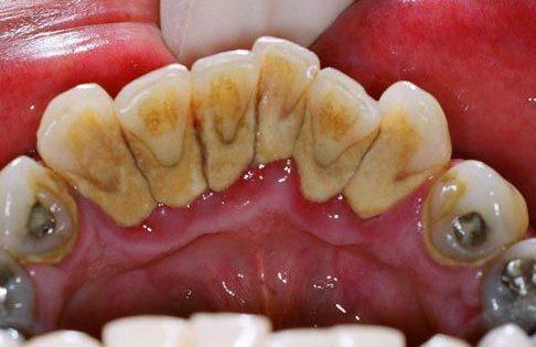 Cạo vôi răng có cần chích thuốc tê không 1