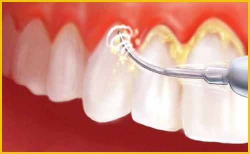 Cạo vôi răng có cần chích thuốc tê không 2
