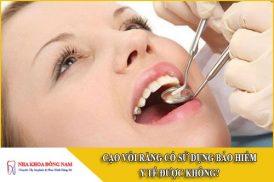 cạo vôi răng có được sử dụng bảo hiểm y tế không