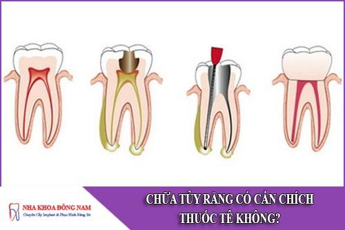 chữa tủy răng có cần chích thuốc tê không