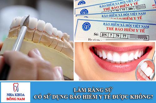 làm răng sứ có được sử dụng bảo hiểm y tế không