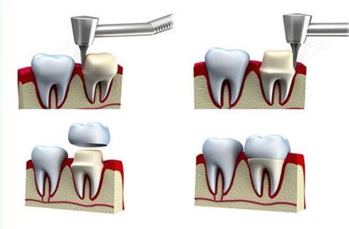 Làm răng sứ có sử dụng Bảo Hiểm Y Tế được không