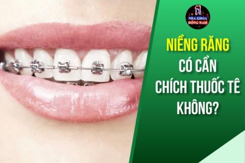 Niềng Răng Có Cần Chích Thuốc Tê Không