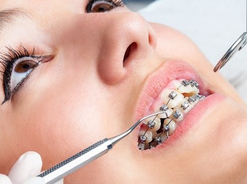 Niềng răng có cần chích thuốc tê không 1