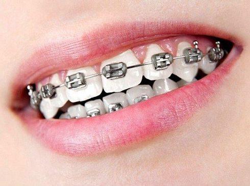 Niềng răng có cần chích thuốc tê không 3