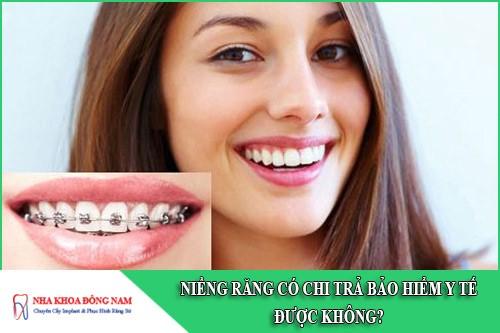 niềng răng có chi trả bảo hiểm y tế được không