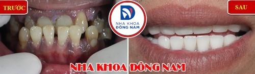 bọc sứ cho răng bị khuyết