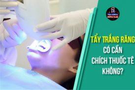 Tẩy Trắng Răng có cần chích thuốc tê không