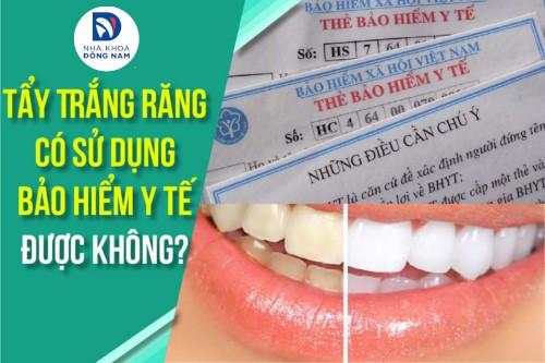 Tẩy Trắng Răng có sử dụng Bảo Hiểm Y Tế được không