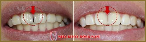 bác sĩ nha khoa trám răng giỏi là phải như thế nào 4