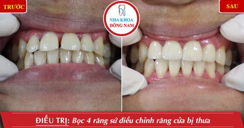 bọc 4 răng sứ điều chỉnh răng cửa bị thưa
