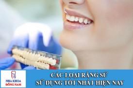 Các loại răng sứ sử dụng tốt nhất hiện nay