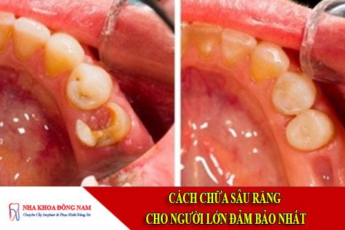 cách chữa sâu răng cho người lớn đảm bảo nhất