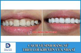 Cách vệ sinh răng sứ theo lời khuyên của nha sĩ