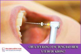 chữa tủy răng có sử dụng được bảo hiểm y tế không