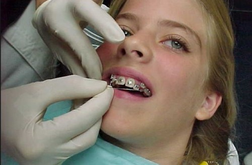đang mang thai có niềng răng được không 2