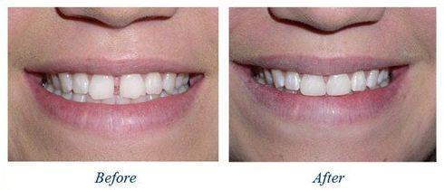 hàm răng thưa có nên bọc sứ không 3