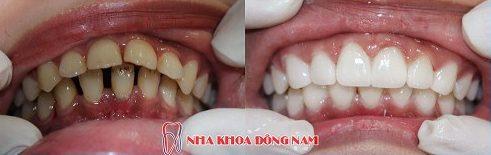 hàm răng thưa có nên bọc sứ không 6