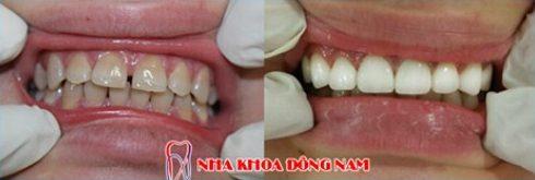 hàm răng thưa có nên bọc sứ không 8