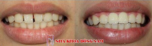 hàm răng thưa có nên bọc sứ không 9
