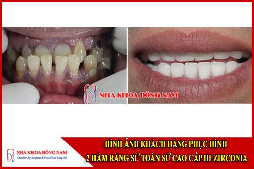 Hình ảnh khách hàng phục hình răng toàn sứ Hi-Zirconia
