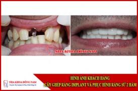 Hình ảnh khách hàng phục hình răng implant và phục hình răng sư