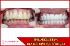 Hình ảnh khách hàng phục hình răng toàn sứ Zirconia