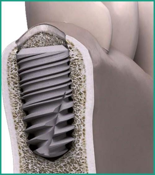 implant etk active khác biệt như thế nào 1
