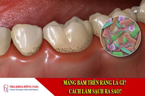 Mảng bám trên răng là gì và cách làm sạch ra sao