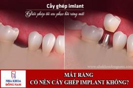 mất răng có nên cấy ghép implant không?