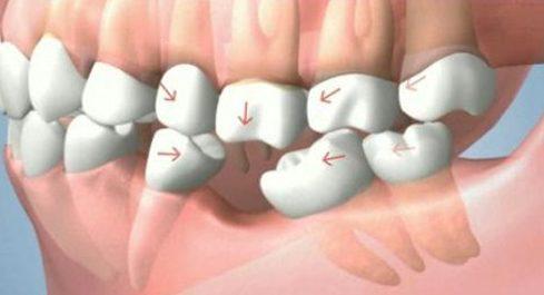 Mất răng có trồng lại được không 1
