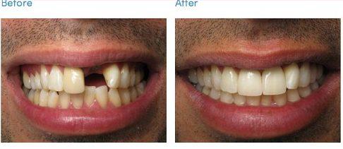 Mất răng có trồng lại được không 2