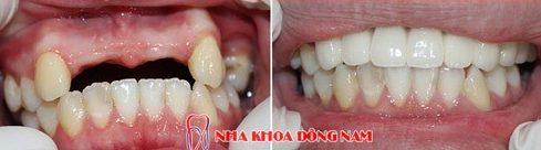 Mất răng có trồng lại được không 4