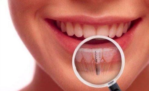 Mất răng có trồng lại được không 6