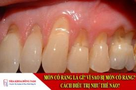 mòn cổ răng là gì? vì sao bị mòn cổ răng? cách điều trị như thế nào?